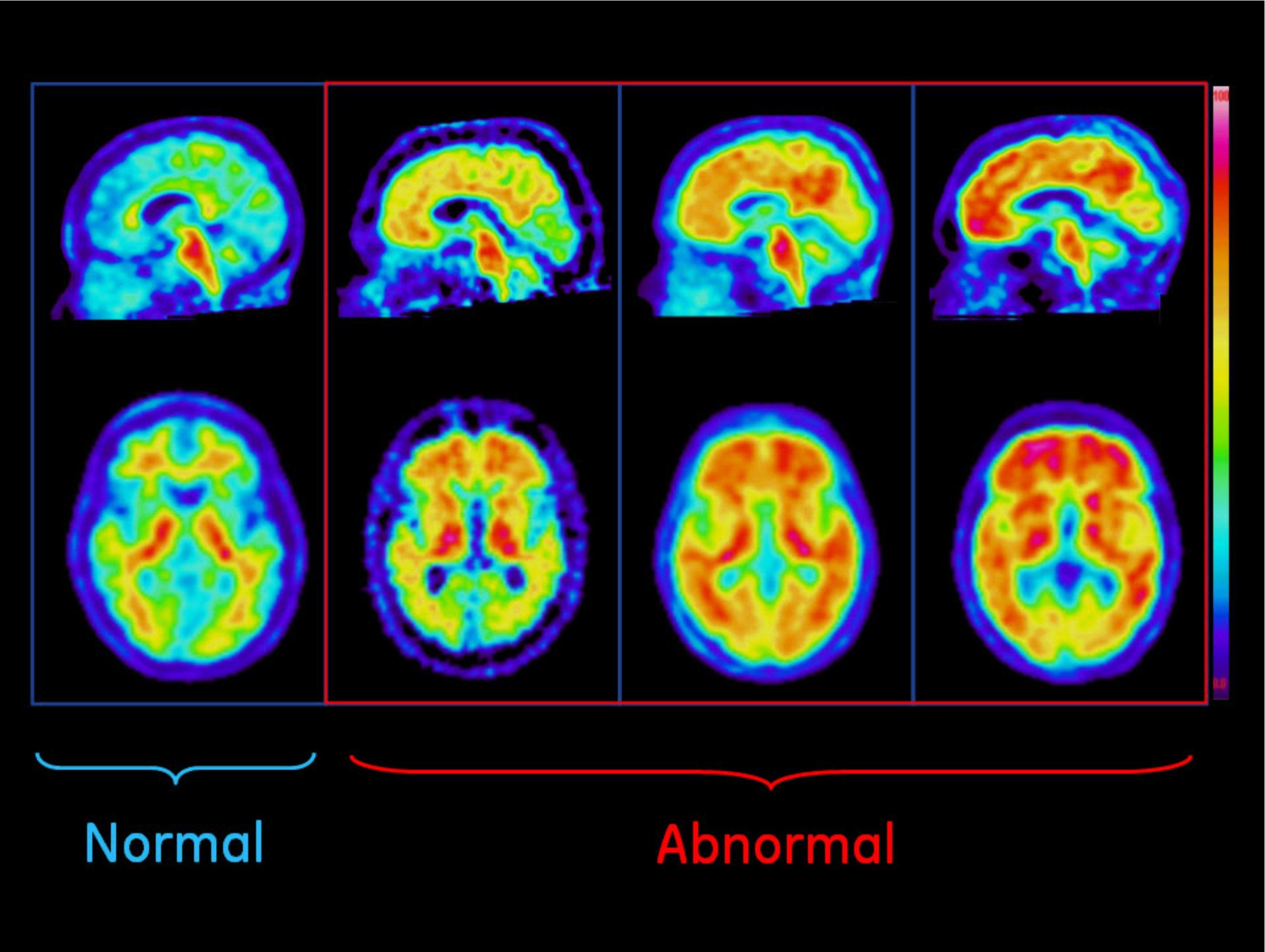 Plaques In Brain Scans Forecast Cognitive Impairment