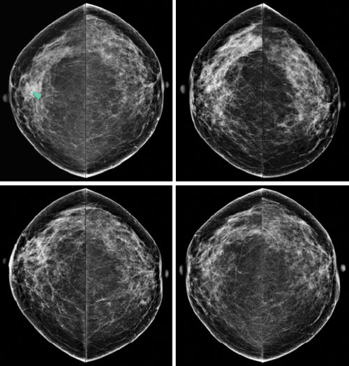 Well, not Breast mri screening guidelines that necessary