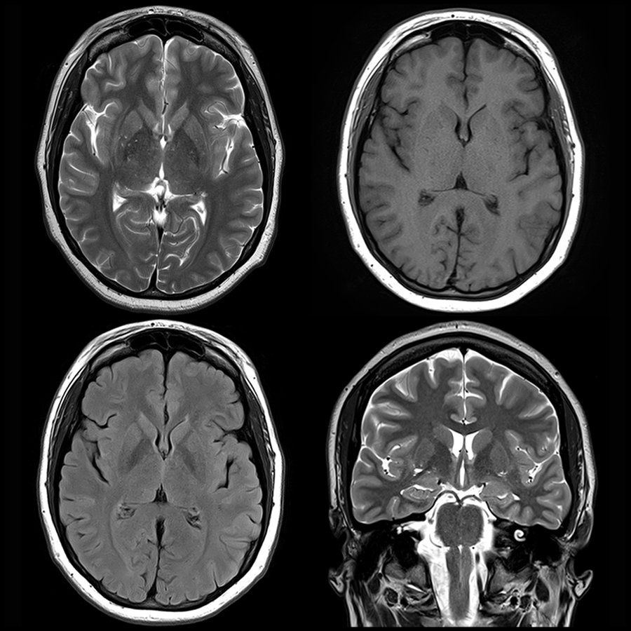 Mri Shows Brain Differences Among Adhd Patients Imaging Technology News