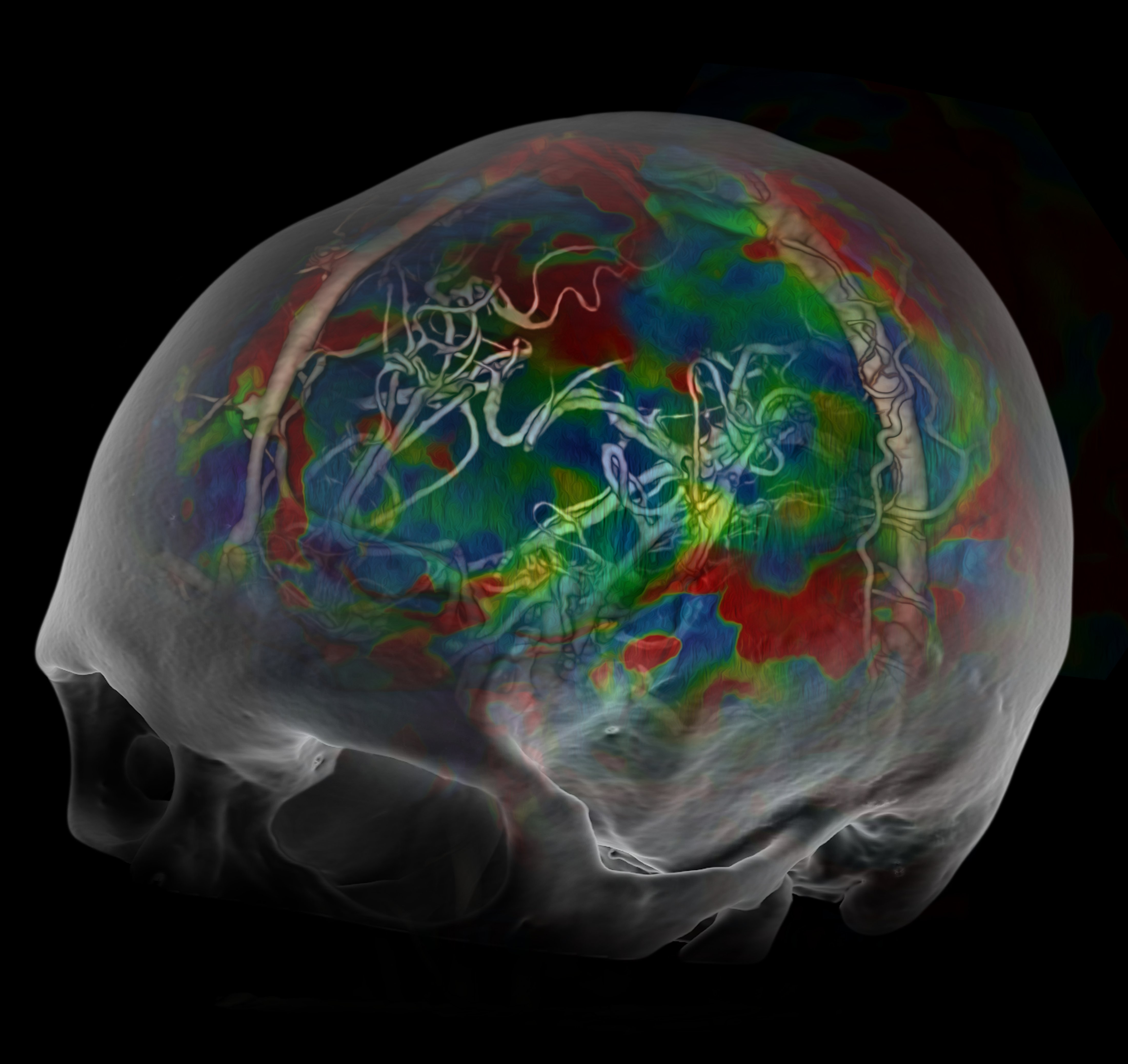 3 D Brain Spect Helps Diagnose Adhd Imaging Technology News