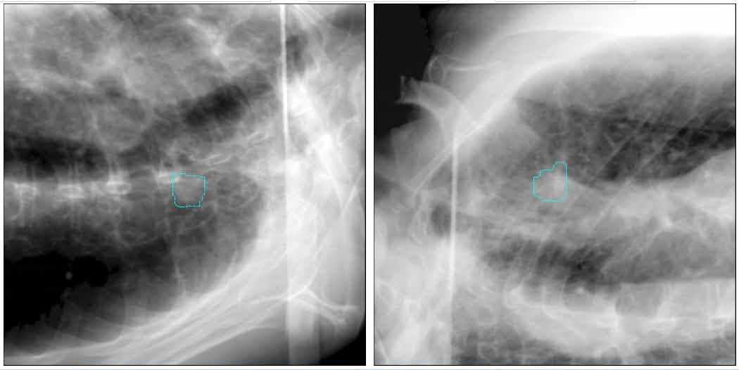 Orthogonal planar images showing the position of the tumor during initial simulation to determine the method in which the tumor is tracked during treatment. Notice that the tumor is only clearly visible in Image A.
