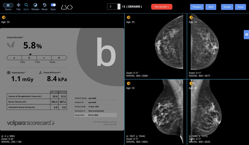 Volpara Health and DetectED-X Team Up to Improve Breast Density Assessment | Imaging Technology News