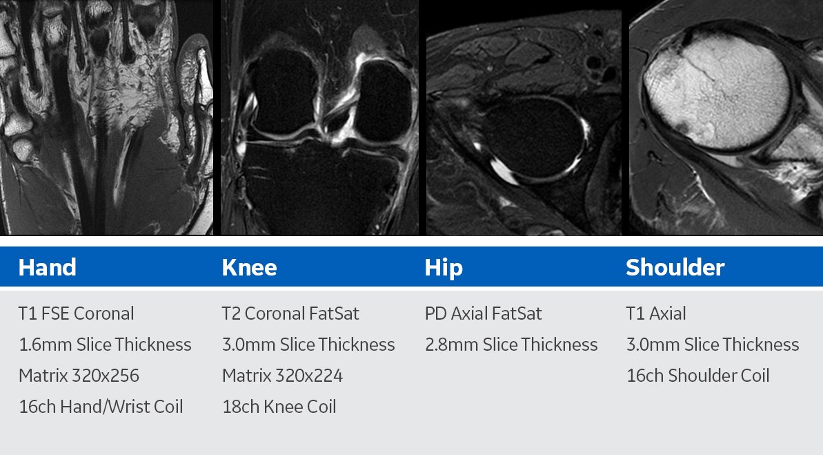 Improve Msk Imaging Outcomes Imaging Technology News