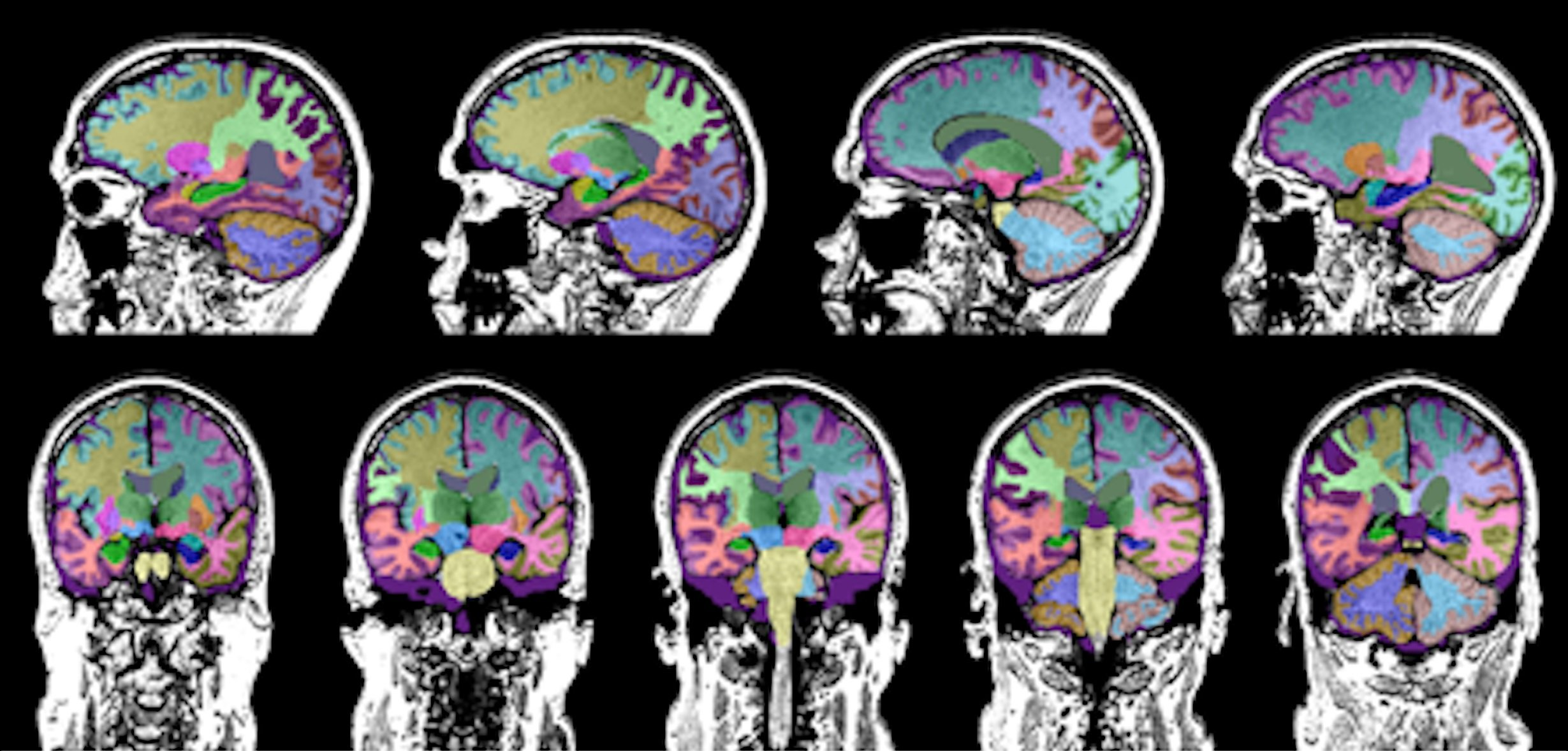 The Neuroreader software program quantifies brain volume in study participants with TBI