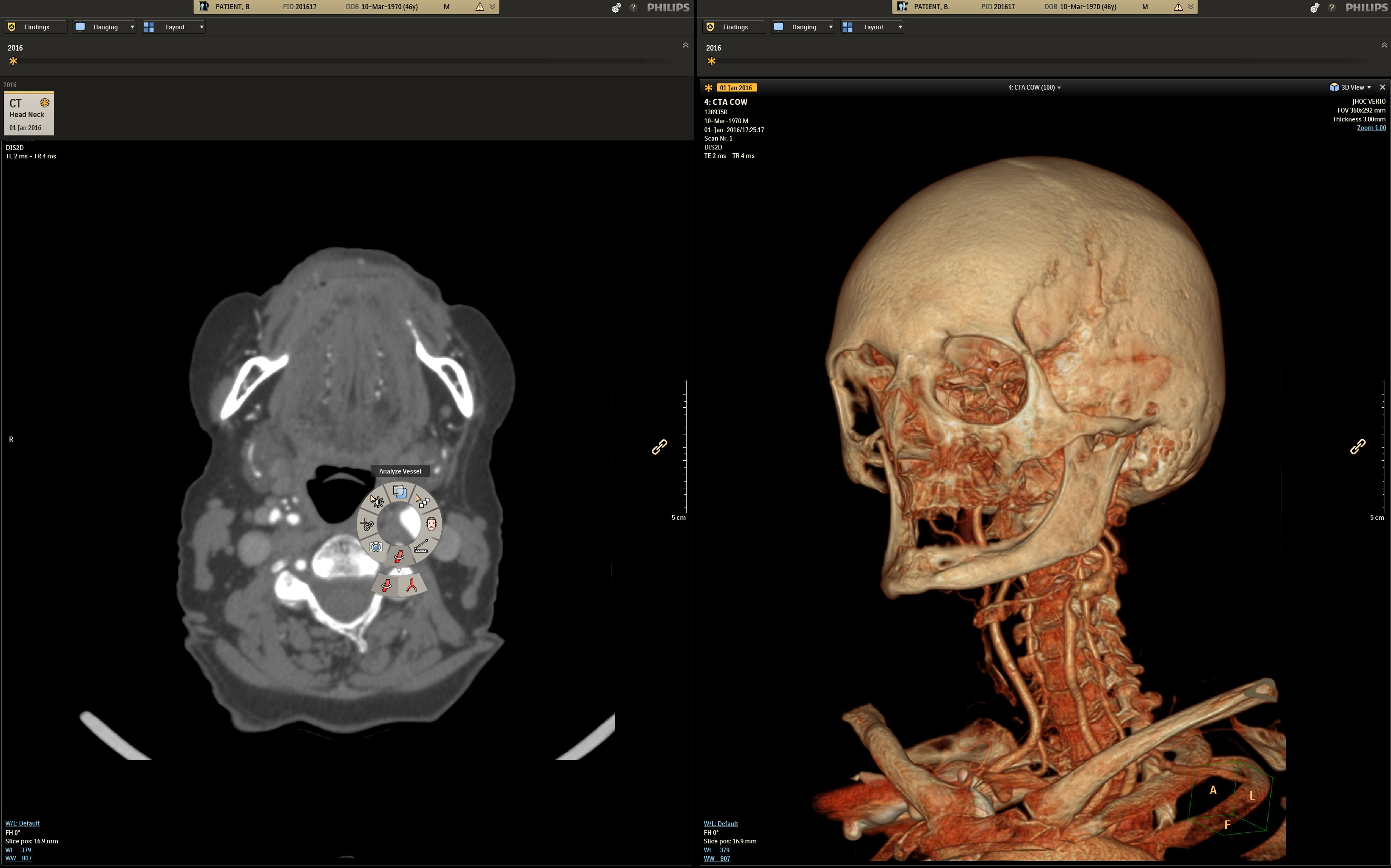 Intel and Philips recently tested two healthcare uses for deep learning inference models using Intel Xeon Scalable processors and the OpenVINO toolkit. One use case focused on X-rays of bones for bone-age-prediction modeling, the other on computed tomogra