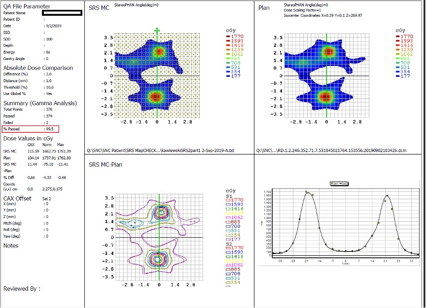 Figure 3: SRS MapCHECK software showing two prominent lesions and the formation of a third lesion.