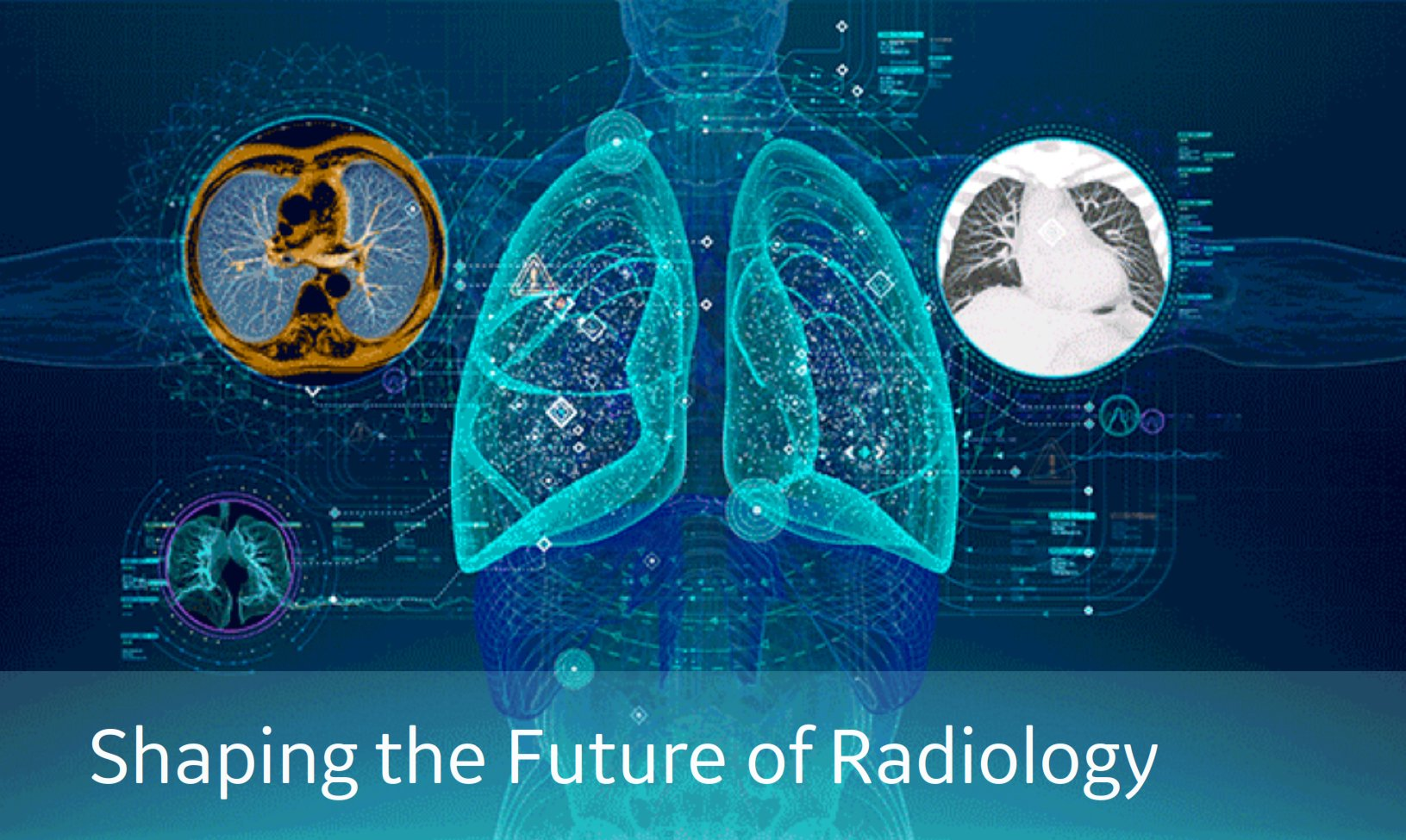 WEBINAR: Shaping the Future of Radiology – How Deep Learning Will Enable Diagnosticians to be ...