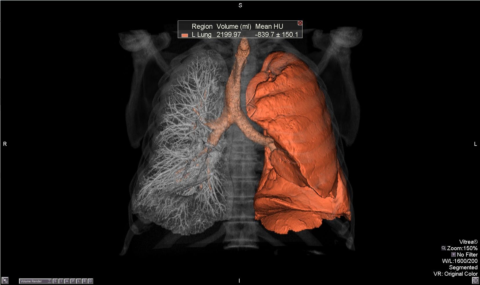 Vital Integrates Nuance Powerscribe 360 Penrad Penlung Into Lung