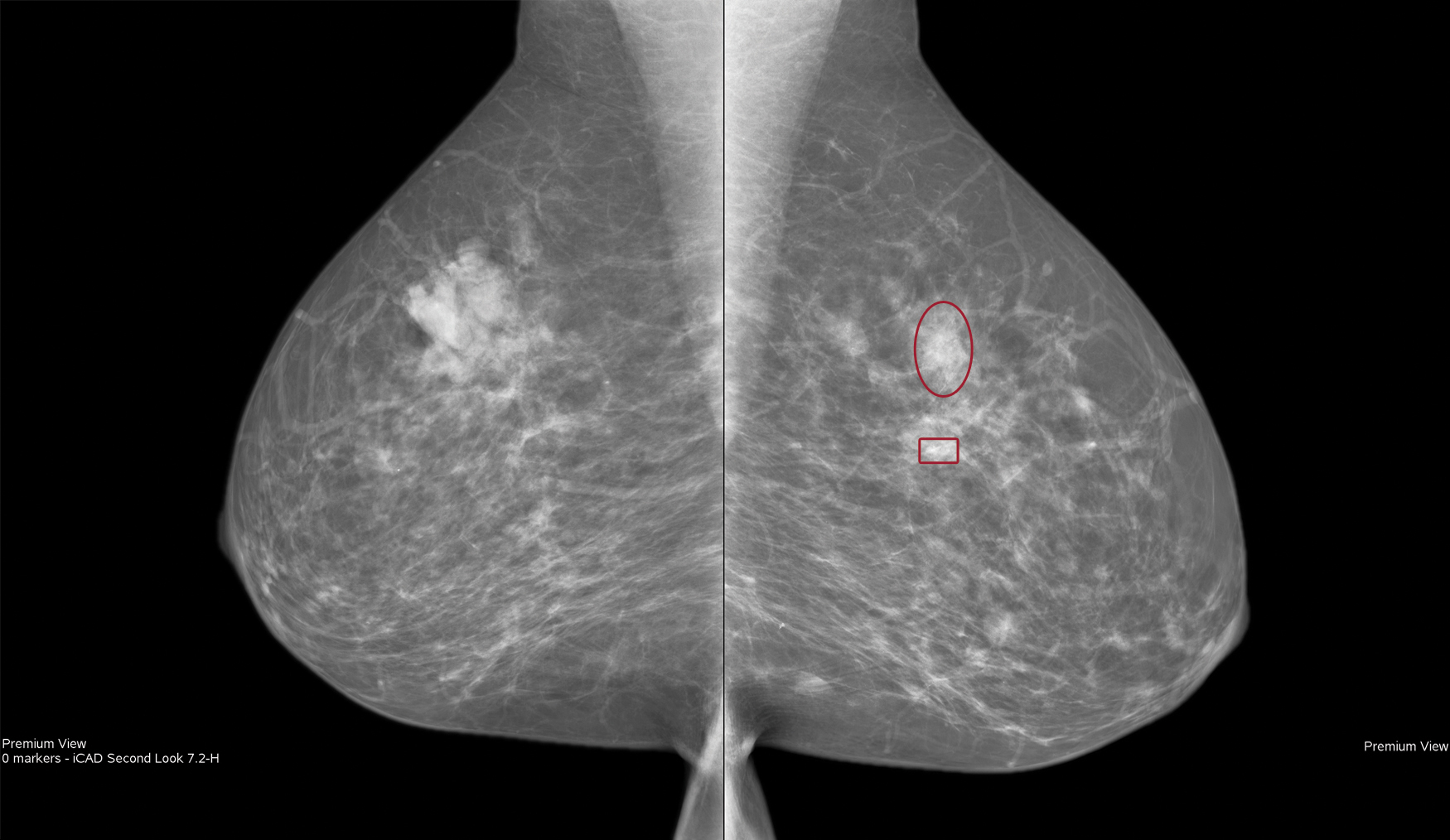 Healthcare Reforms Spur Increase In Screening Mammography