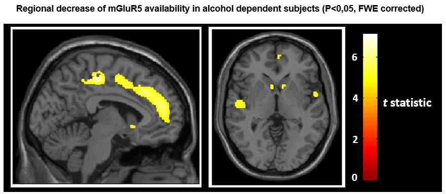 Pet Ct Reveals Adaptations Of The Alcoholic Brain