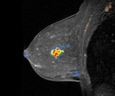 CAD Takes On Breast MR, Reduces Biopsy Rates