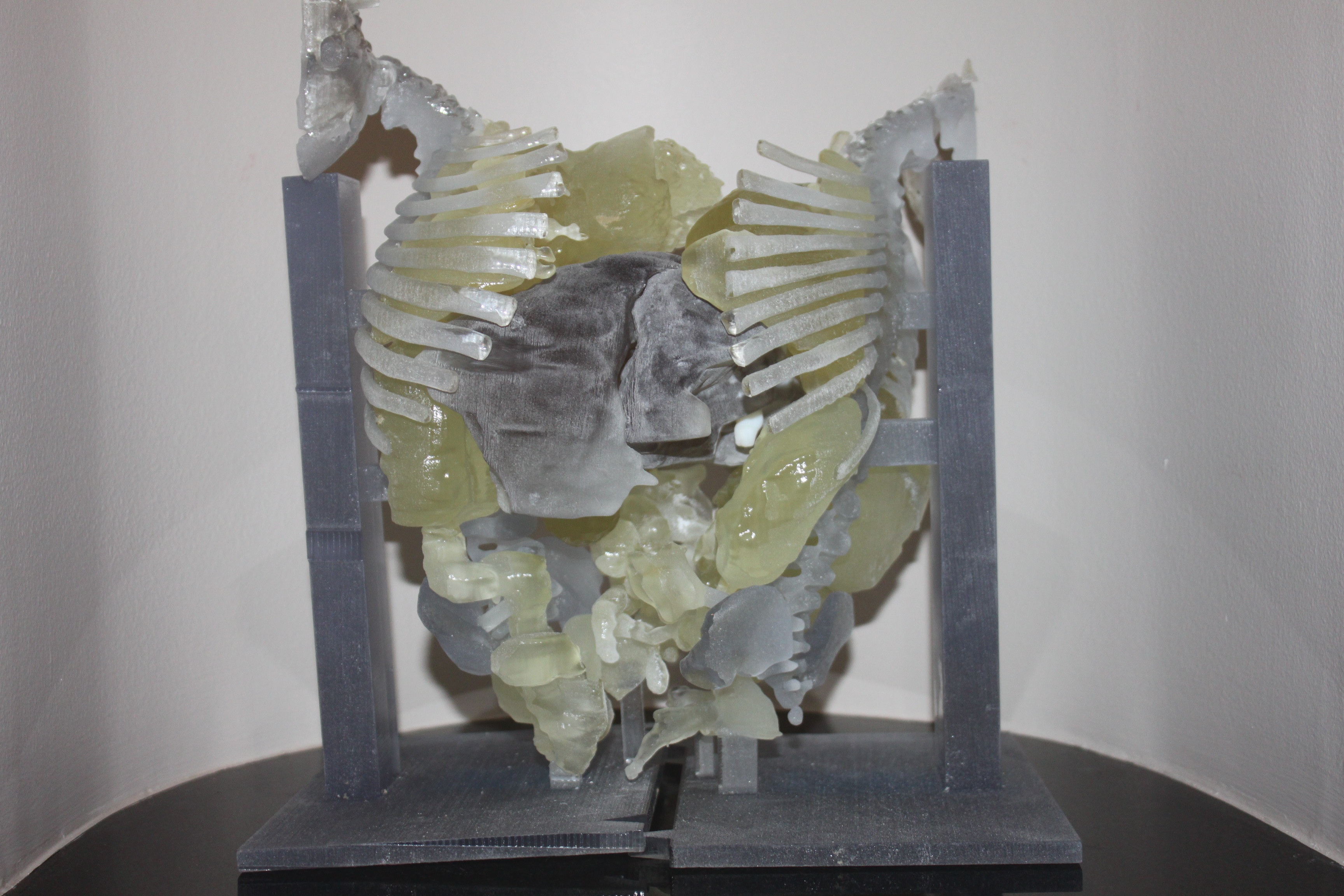 3-D print, conjoined twins, RSNA 2015