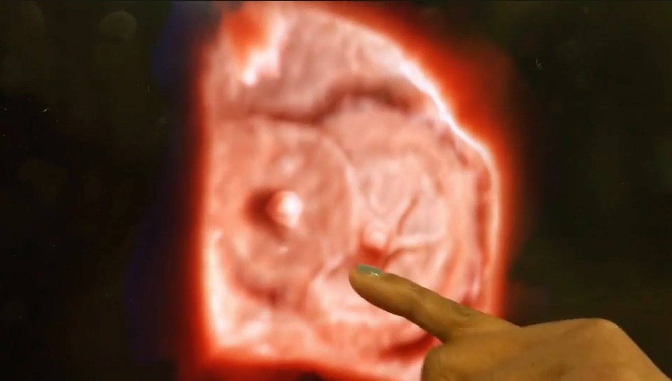 An example of Philips' TrueVue technology, which offers photo-realistic rendering and the ability to change the location of the lighting source on 3-D ultrasound images. In this example of two Amplazer transcatheter septal occluder devices in the heart, the operator demonstrating the product was able to push the lighting source behind the devices into the other chamber of the heart. This illuminated a hole that was still present that the occluders did not seal.