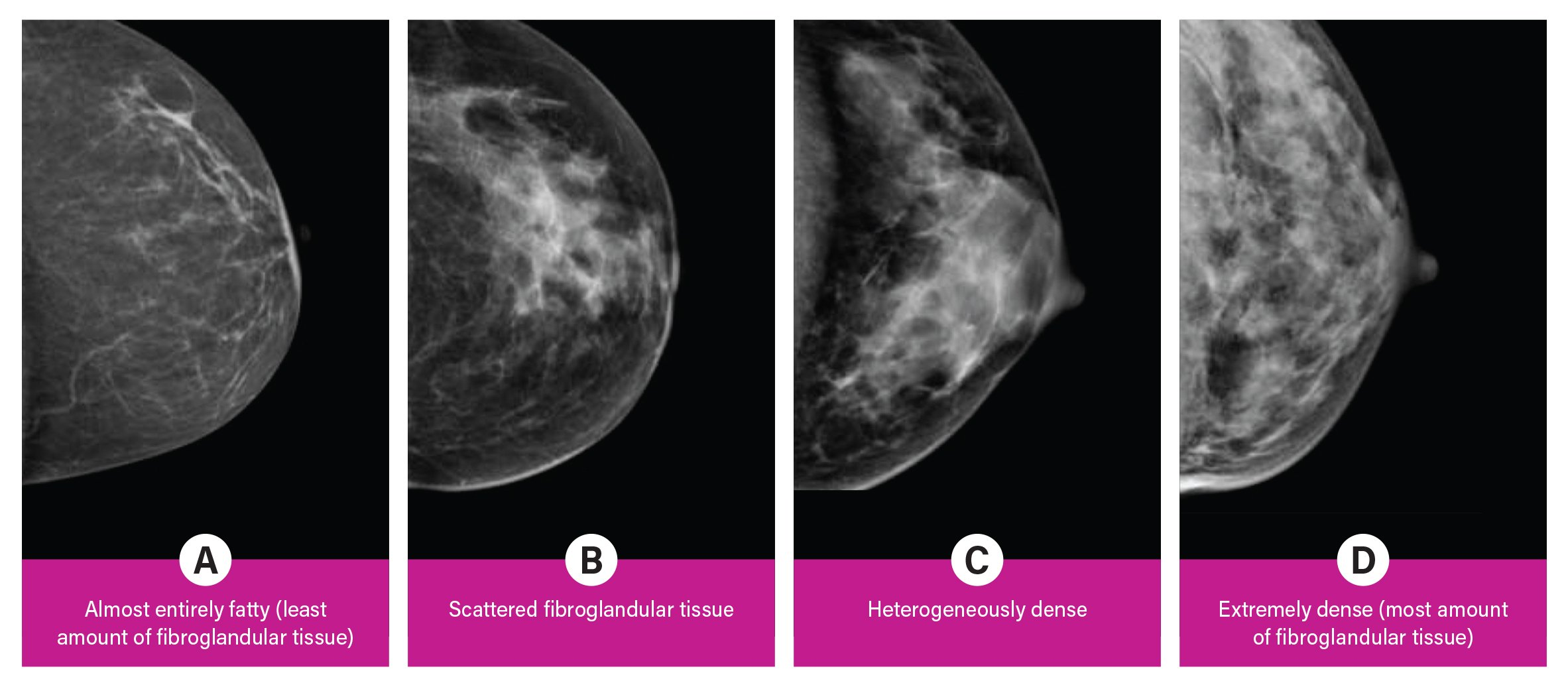 Breast density is divided into four categories, from lowest to highest amounts of fibroglandular tissue composition. Category A: Almost entirely fatty (least amount of fibroglandular tissue). Category B: Scattered fibroglandular tissue. Category C: Heterogeneously dense. Category D: Extremely dense (most amount of fibroglandular tissue).