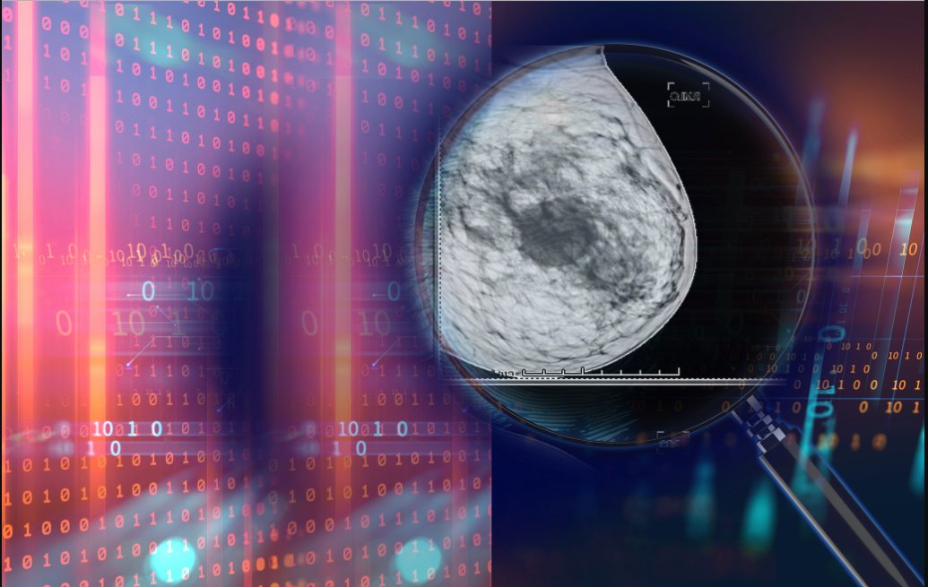 A recent study earlier this year in the journal Nature, which included researchers from Google Health London, demonstrated that artificial intelligence (AI) technology outperformed radiologists in diagnosing breast cancer on mammograms