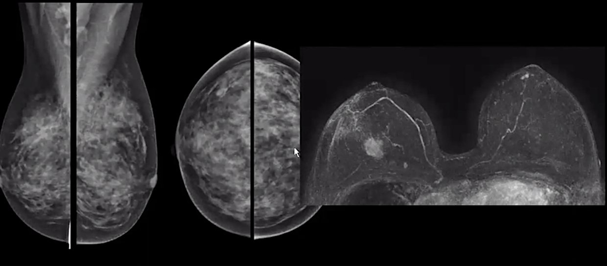 A comparison of standard mammography imaging (left) in a woman with dense breasts and a breast MRI imaging study (right) showing a clearly defined cancer and is extremely hard to detect on the mammograms.