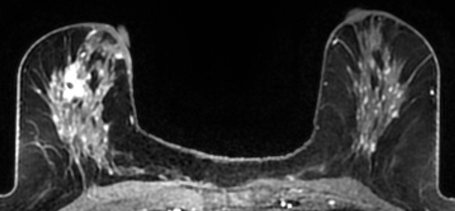 Dense Breast Tissue Supplemental Imaging Imaging