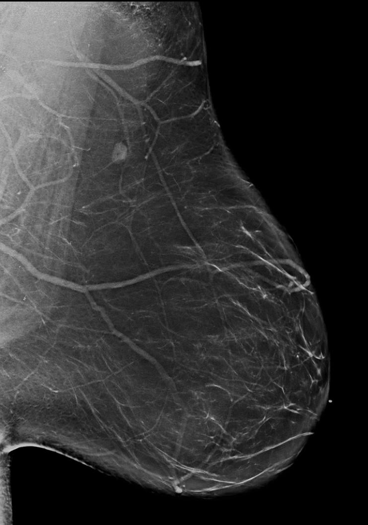 BI-RADS Category A: Almost entirely fatty (least amount of fibroglandular tissue). Dense Breasts