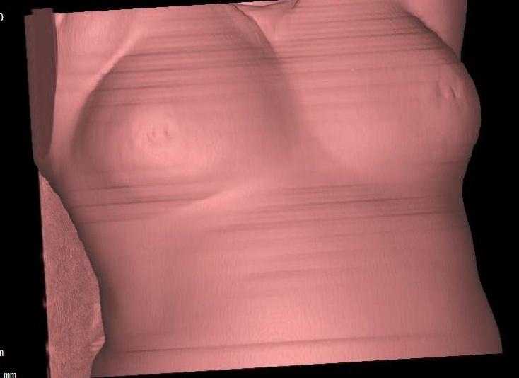 breast imaging