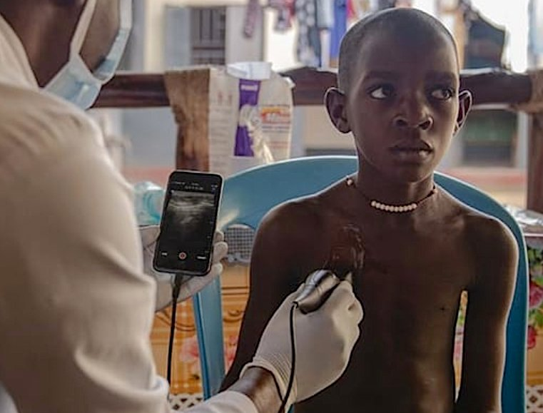 A Butterfly Network point-of-care ultrasound (POCUS) system being used in Africa. The vendor wants to democratize ultrasound, making it less expensive and available everywhere, including rural areas and the developing world.