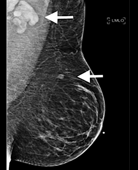 A 37-year-old woman developed a new, palpable left supraclavicular lymphadenopathy lump five days after her first dose of the Moderna COVID-19 vaccine in the left arm. On the day of vaccination, the patient was asymptomatic. This is an example of how the vaccine can mimic cancer and swollen lymph nodes.Image used with permission of RSNA.