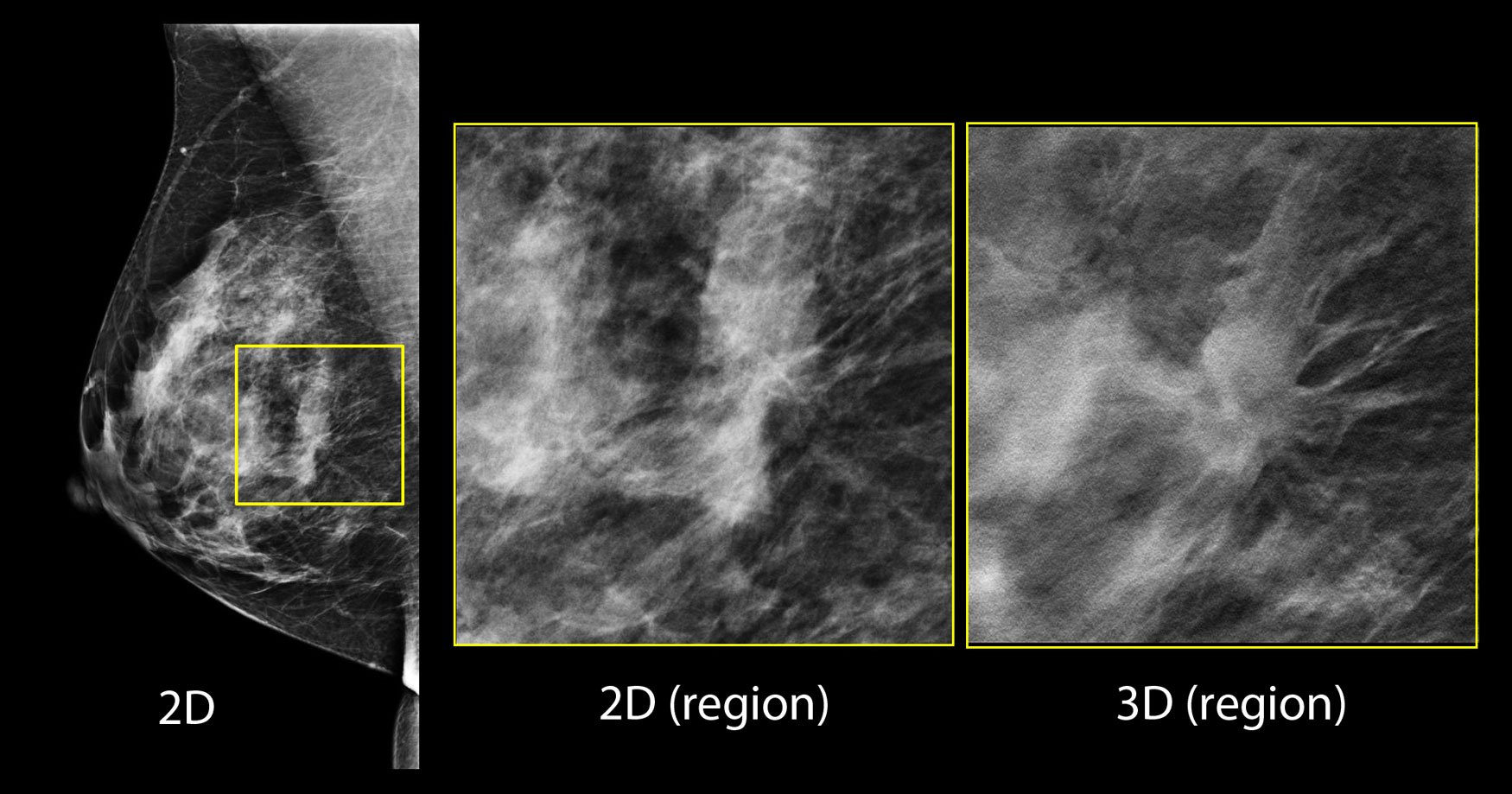 In the screening 2-D mammogram (left image), there is a possible lesion in the central breast, but its margins are difficult to assess. Using tomosynthesis this can be clearly seen to be a spiculated mass, and almost certainly a malignancy.
