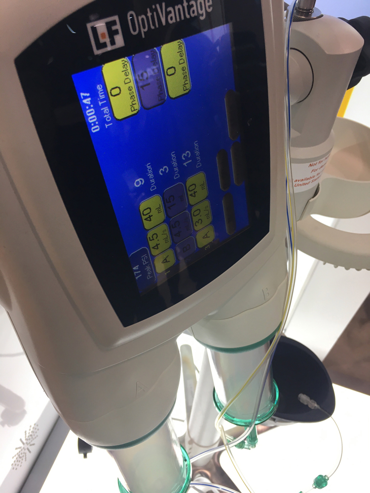 Guerbet was showing a work-in-progress next generation contrast media dose recording software that allows the hospital to enter all its contrast protocols and these will automatically upload to the injector when a patient's imaging order is being processed for a scan. This can save programming time before each scan.