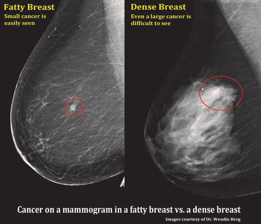 Mammographic Breast Density — What It Means