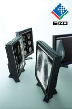 All Eizo medical-grade monitors are adjusted for uniform brightness and DICOM calibration