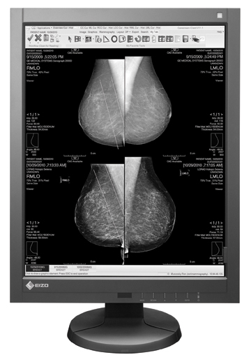 How to Choose a Diagnostic Flat Panel Display