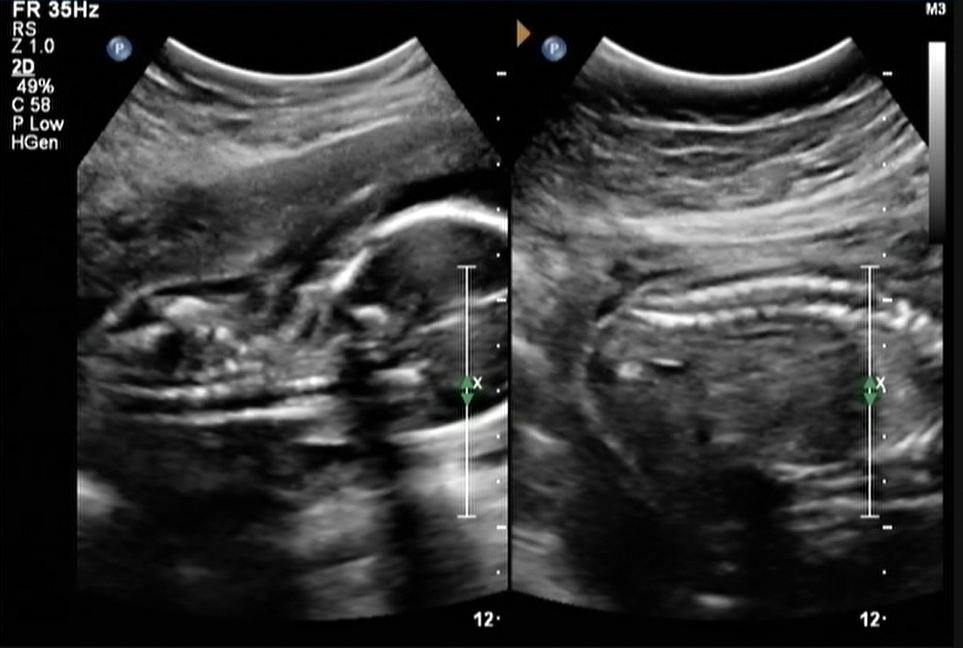 Fetal ultrasound picture composite created during exams to screen for spina bifida. Katherine Fornell.