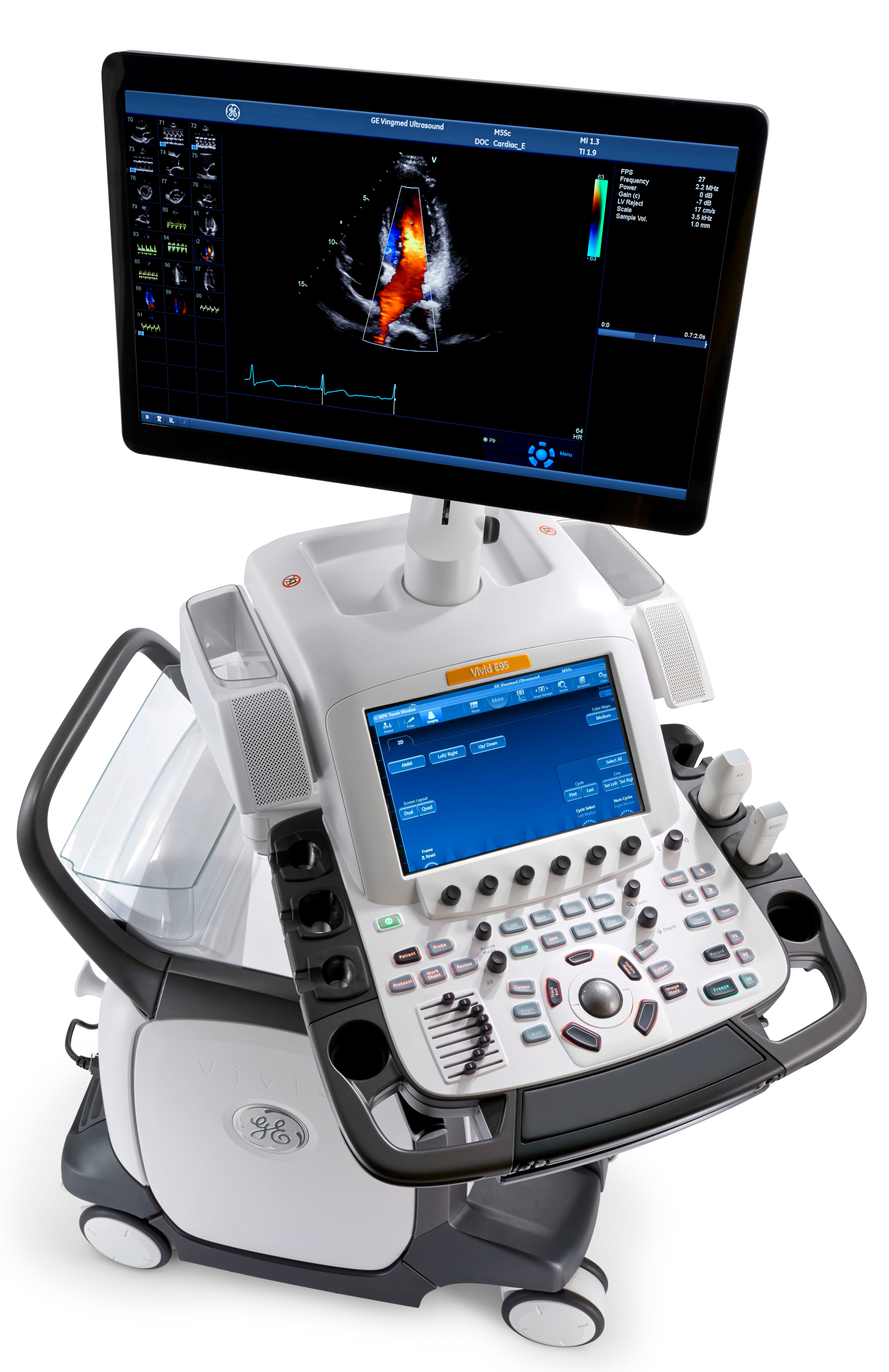 The Vivid E95 is one of the most advanced ultrasound platforms GE Healthcare offers.