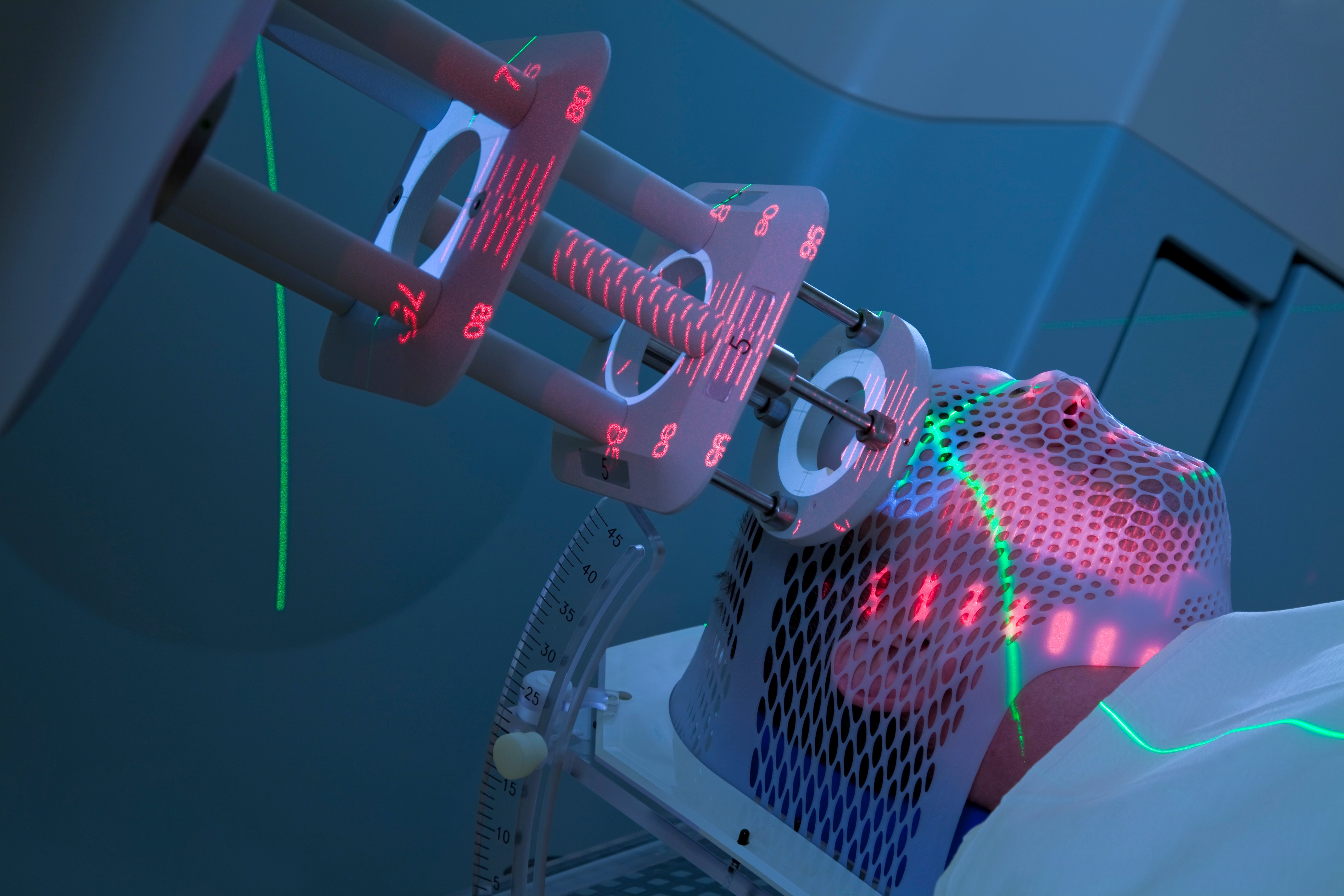 Proton therapy has evolved, and future predictions include smaller systems, more sophisticated proton dosimetry and devices that manipulate the proton beam