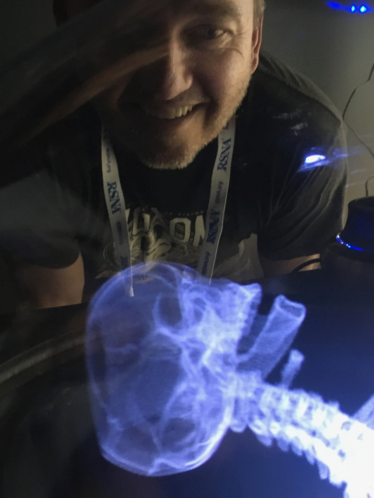 This is a hologram of a fracture CT scan displayed by the start up company Voxon at RSNA 2019. The technology uses a half millimeter thick glass plate that pulses up and down very rapidly while projecting 4,000 images per second. It can display DICOM or STL files used for 3-D printing.