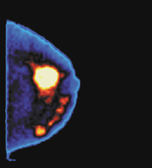 Molecular Imaging Broadens Scope in Breast Imaging
