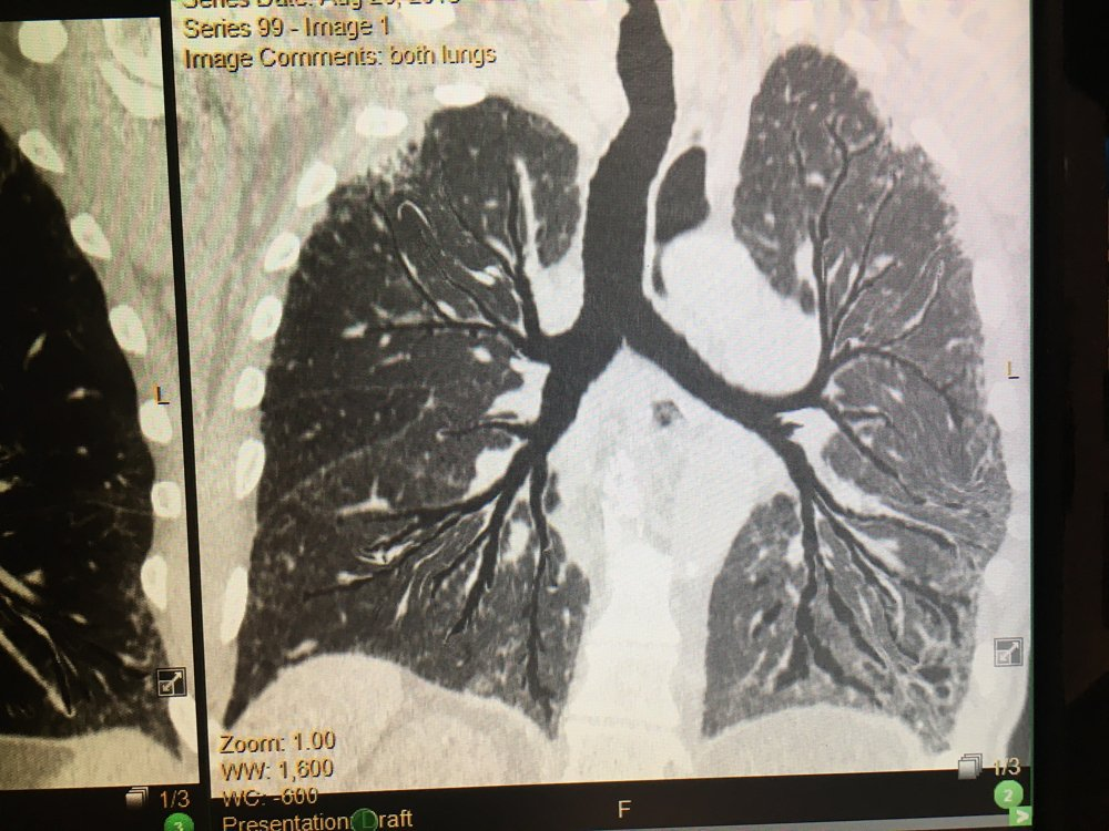 This is an artificial intelligence (AI) of a reconstructed image of lung bronchia in one image, demonstrated by the vendor Vida in its LungPrint software. Rather than needing to follow each branch on the slice the CT study. The purpose is to offer a quick view of the airways and help quickly identify any issues. This Hyperion view is also used as a reference image when the AI identifies anything in the scan, such as suspected nodules, COPD or emphysema.