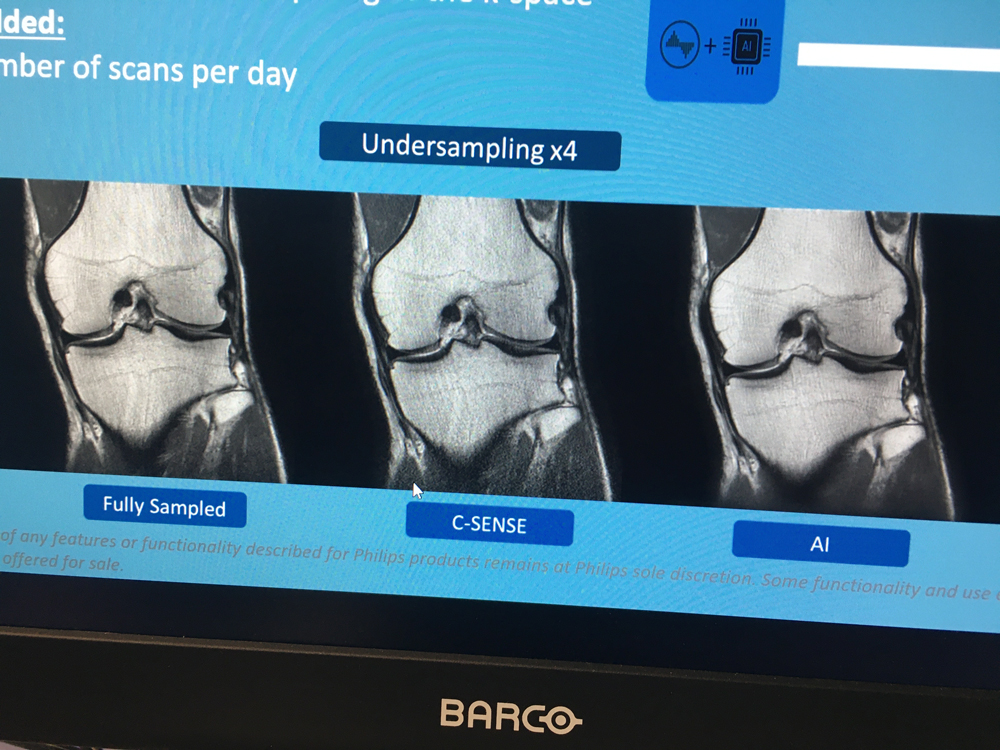 Philips Healthcare is using artificial intelligence (AI) to better reconstruct MRI images to remove artifacts and improve image quality. This example was shown by the vendor during a booth tour at RSNA 2019,Philips Healthcare is using artificial intelligence (AI) to better reconstruct MRI images to remove artifacts and improve image quality. This example was shown by the vendor during a booth tour at RSNA 2019,