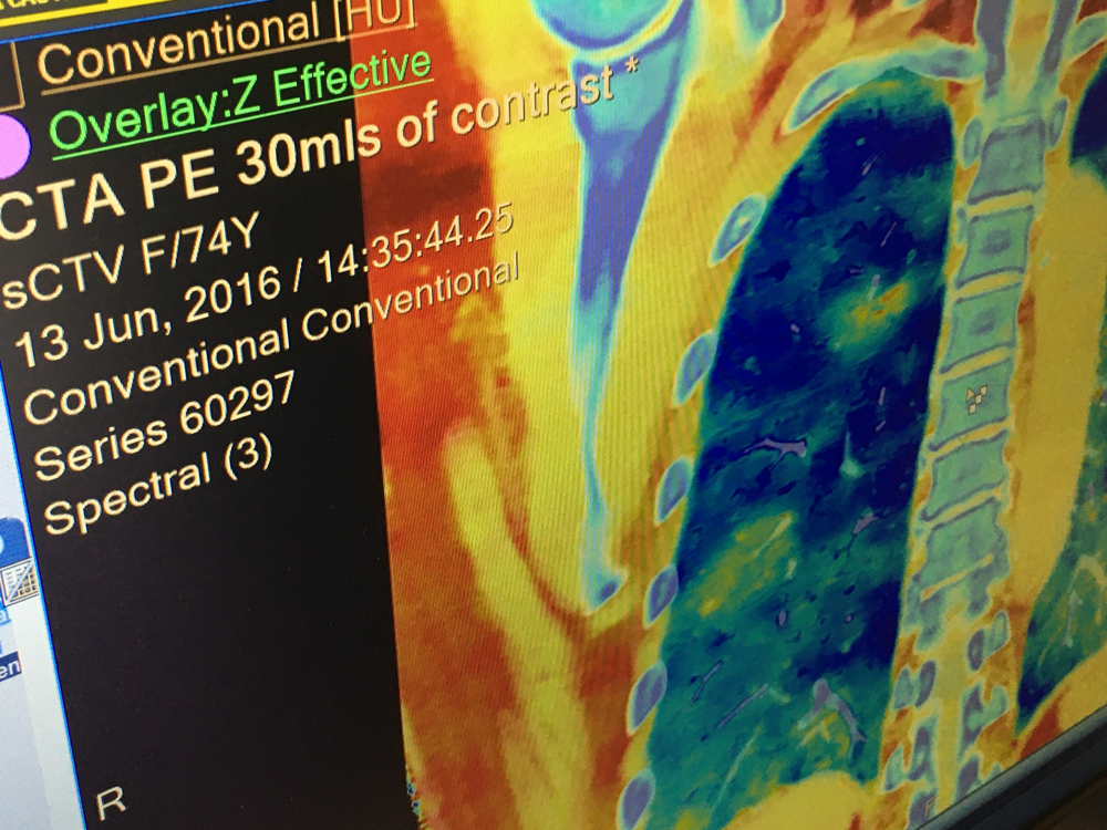 An example of Spectral CT showing locations of pulmonary embolisms (PE) using an iodine map overlaid on the CT anatomical imaging. The closeups show two PEs on the dual energy images, and how the iodine map can be leveled in and out to pinpoint areas of low or no perfusion. You can see the clots in the culprit vessel segments. This was demonstrated at the Philips booth showing images from the IQon scanner at RSNA 2019.