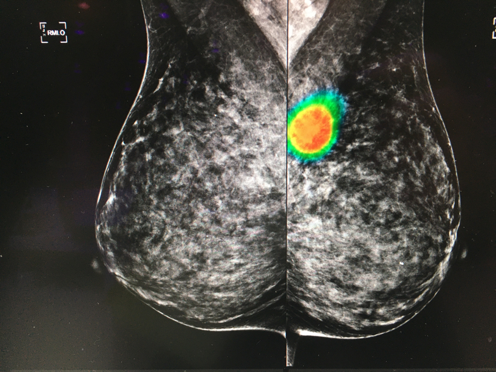 An artificial intelligenceapp to auto detect areas of interest on mammograms from the vendor Lunit. The software was shown as a work in progress. The AI can perform a first pass on mammograms to flag exams and bring them to the top of reading lists, acting as a second set of eyes for the radiologist. #RSNA #RSNA2019