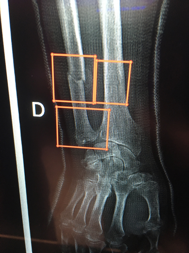 Artificial intelligence (AI) from Intrasense designed to detect bone fractures and highlight areas of interest for the radiologist as a first pass. The AI can assist as a second set of eyes to locate what might be hairline fractures, which can be difficult to see.
