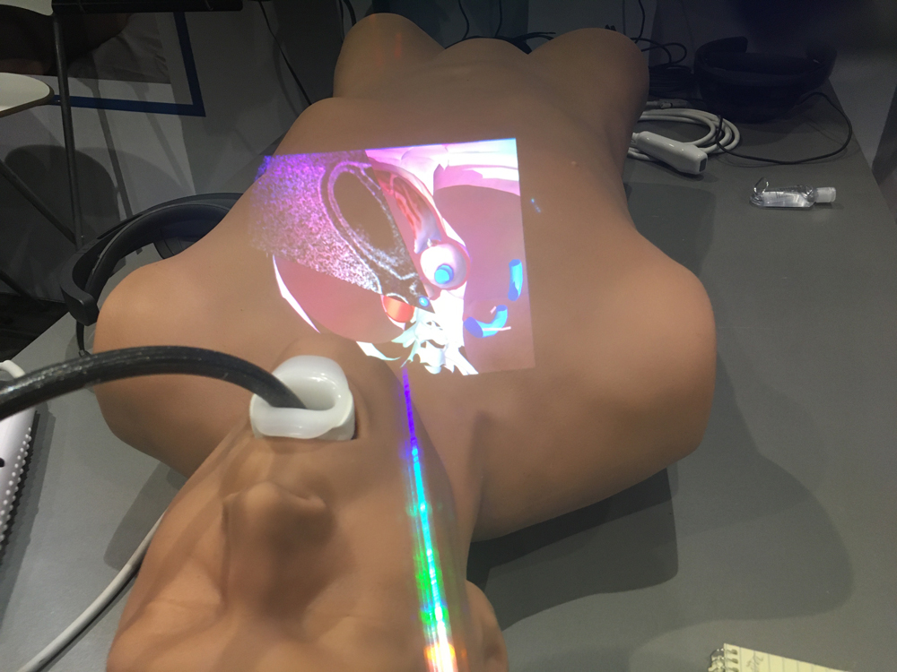 This is an augmented reality (AR) training system for transesophageal echo (TEE) created by the simulation company CAE.