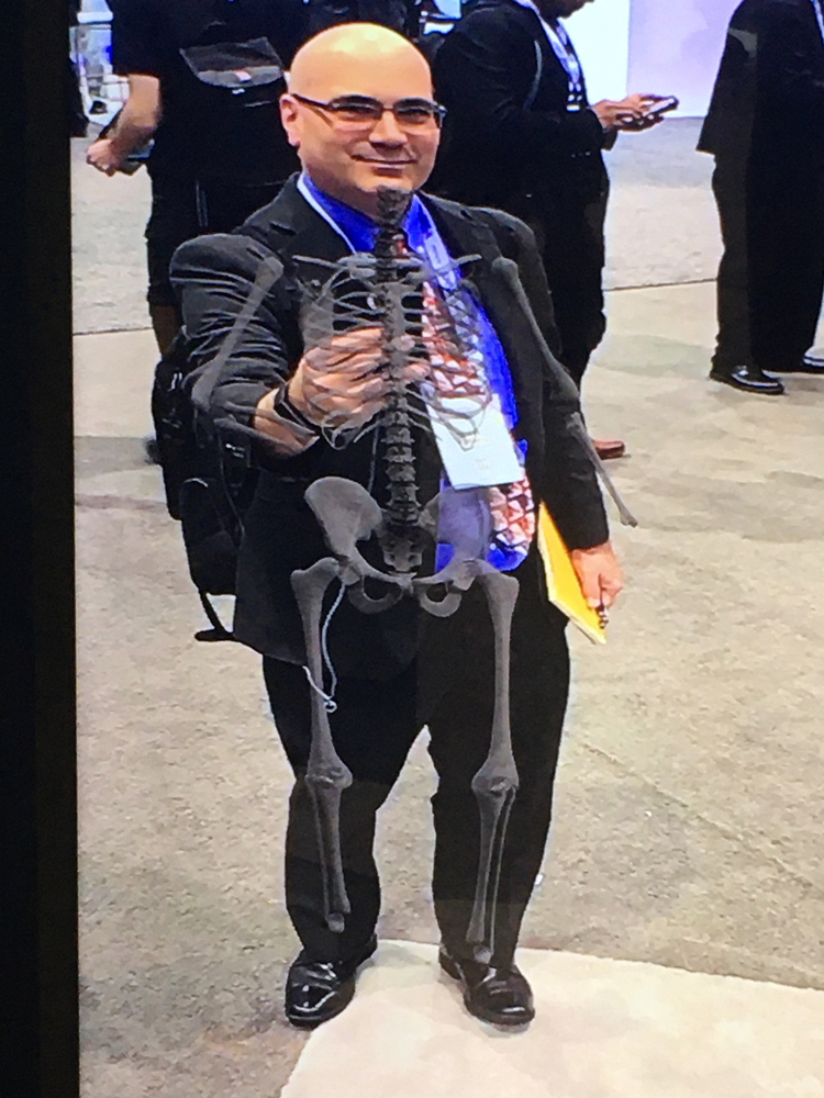 ITN Editor Dave Fornell. Software being shown by GE Healthcare, showing how augmented reality can be used for patient education. It superimposes a full skeleton onto a patient on a large display screen and as they move the skeleton moves with them.