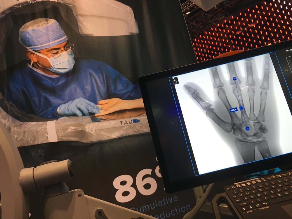 Orthoscan launched its new Tau 20/20 mini C-arm system for surgery in 2019, which the vendor says has the lowest dose available for a mini C-arm system. It has FDA indications for pediatrics and has a 20 x 20-inch detector.