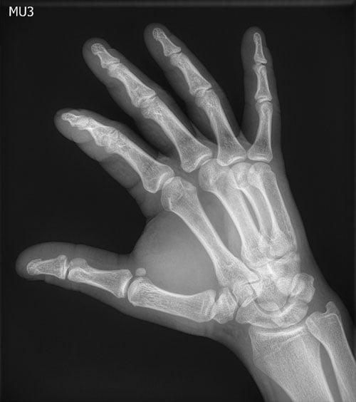 digital radiography, DR, Agfa, Musica