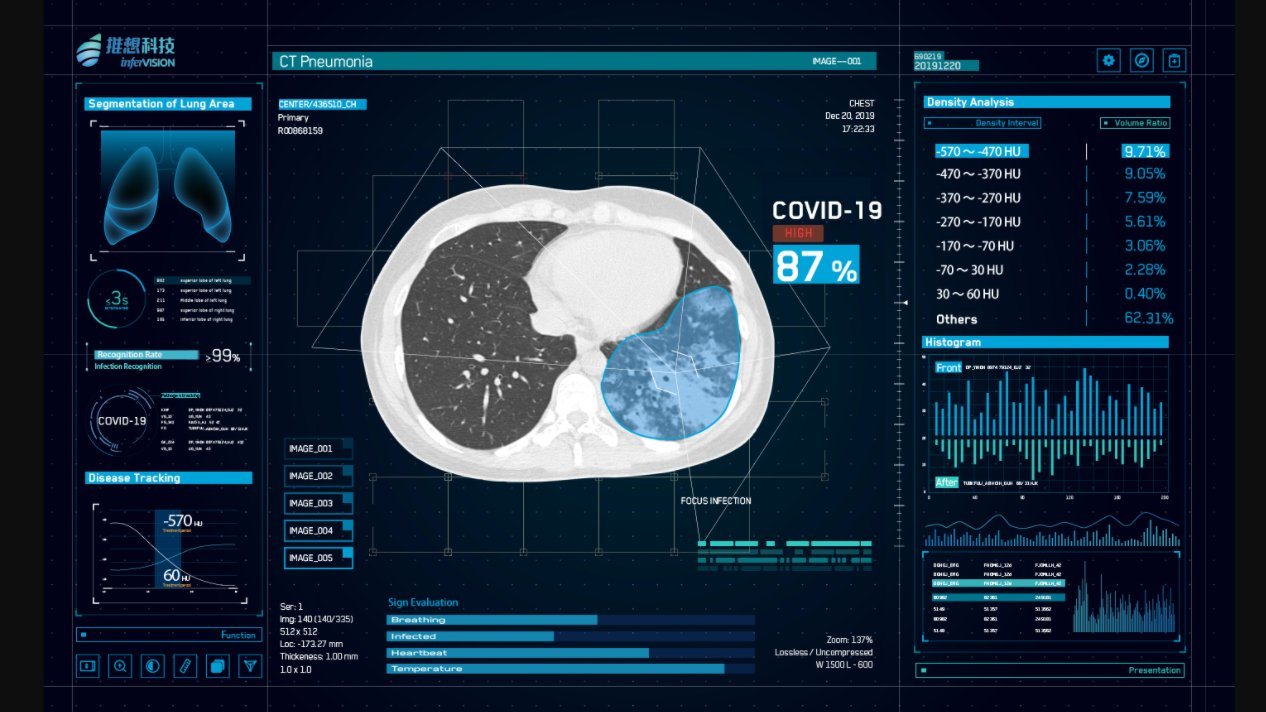 AI vendor Infervision's InferRead CT Pneumonia software uses artificial intelligence-assisted diagnosis tp improve the overall efficiency of the radiology department. It is being delayed in China as a high sensitivity detection aid for novel coronavirus pneumonia (COVID-19). #COVID-19 #COVID19 #Coronavirus #2019-nCoV