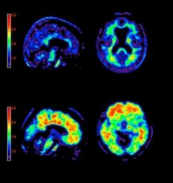Research Shows New Alzheimers Treatment Fully Restores