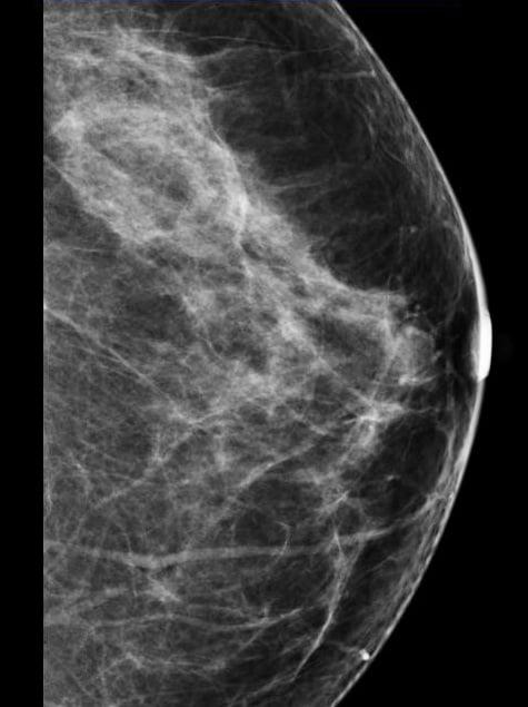 fibroglandular densities, dense breasts, New York Legislation, New York Law,