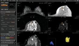 Morphology_analysis