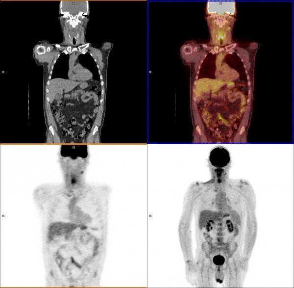 What Is Pet Imaging Imaging Technology News
