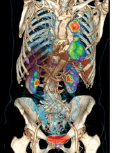 PET/CT scanners allow for precise anatomic localization of molecular data and simultaneous anatomic evaluation in a single exam. Depicted here is lung cancer. (Photo courtesy of Siemens Healthcare)